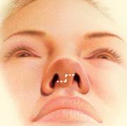 operacija korekcija nosu