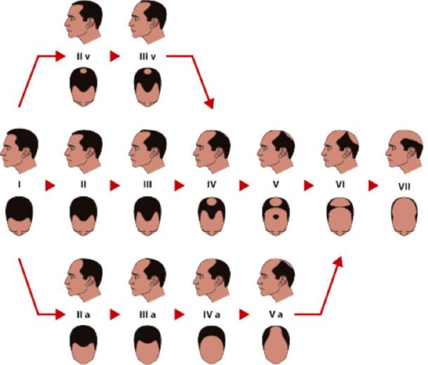 presaditev las