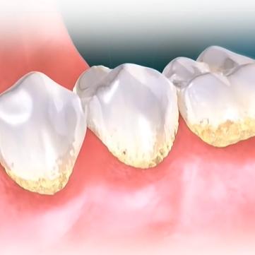 Zobne obloge so osnova za nastanek zobnega kamna