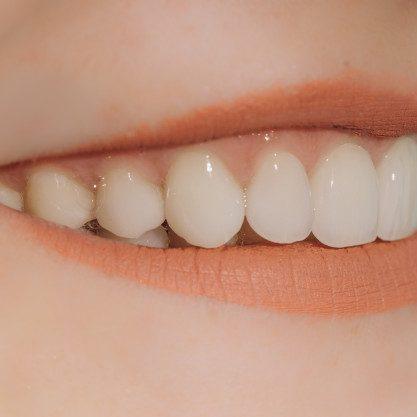 Redno čiščenje zobnega kamna omogoči lep nasmeh
