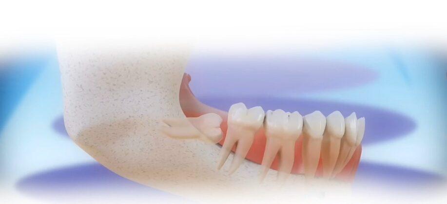 Modrostni zobje ob izraščanju