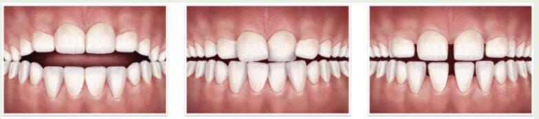 Odprti ugriz, nagneteni zobje, pretiran razmik med zobmi