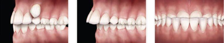 Nenormalno izraščanje zoba, protruzija, proganija.