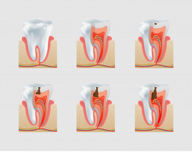 Prikaz napredovanja parodontalne bolezni