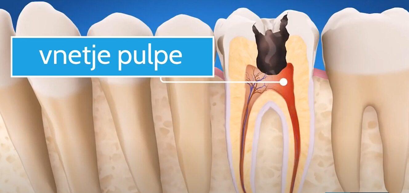 Ko se pojavi vnetje zoba, se priporoča zdravljenje zoba