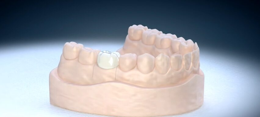 Zobna prevleka v celoti pokriva obrušen zob