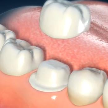 Zobna prevleka se cementira na obrušen zob