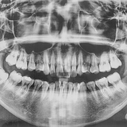 Panoramski posnetek (ortopan slika)