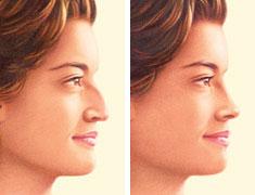 korekcija nosu