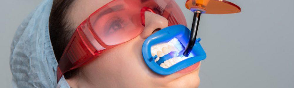 Bela zalivka je namenjena za zapolnitev manjših, srednjih ali večjih lukenj v zobu