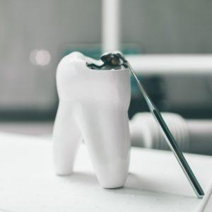 Pacient skupaj z zobozdravnikom izbere katera vrsta inlay bo zanj najbolj primerna