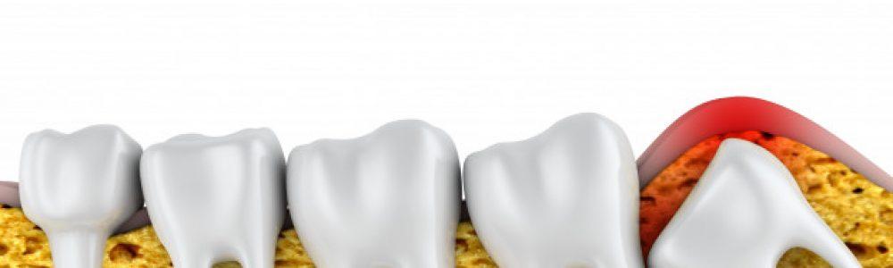 Modrostni zobje ob izraščanju lahko povzročijo močno bolečino