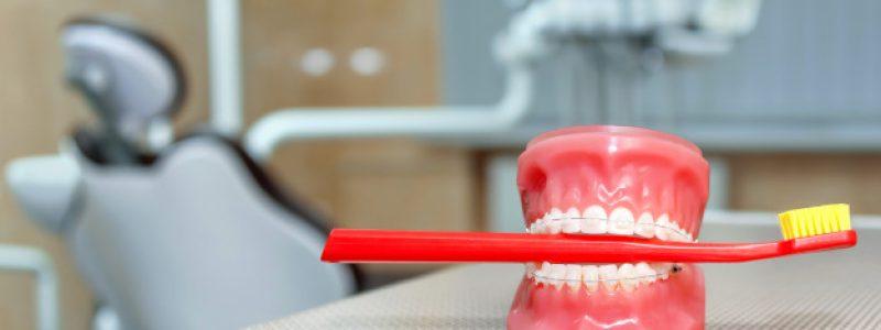 Slika 1: Nevidni zobni aparat