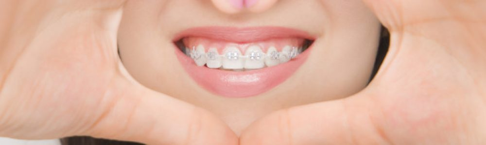 Slika 2: Nevidni zobni aparat