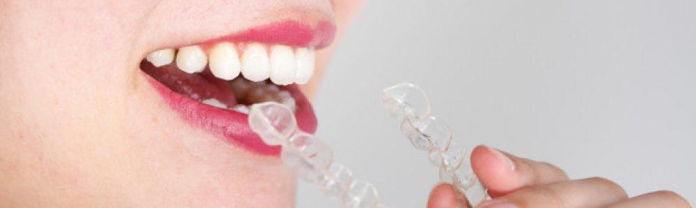 Slika 3: Nevidni zobni aparat