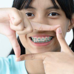 Ortodont za otroke, ortodont samoplačniško, ortodont cenik