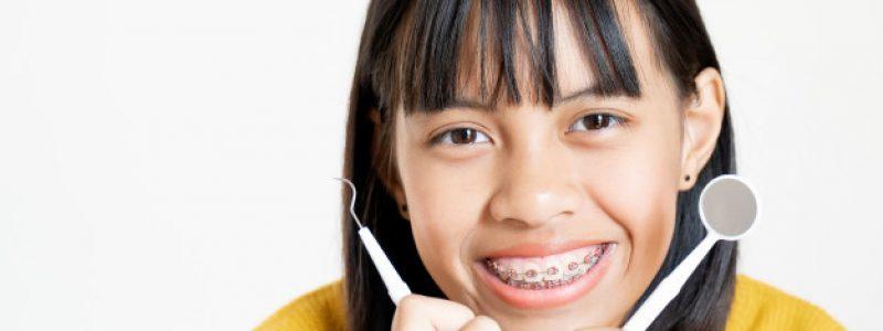 Slika 2: Ortodontija za otroke