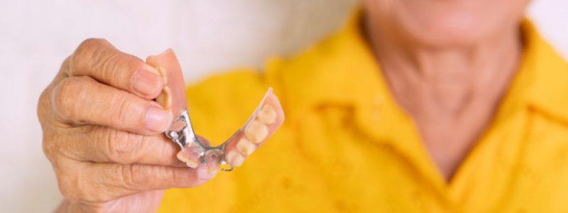 Slika 2: Delna zobna proteza