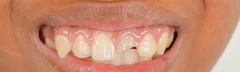 Zobne luske so rešitev za odkrušene oz. poškodovane zobe