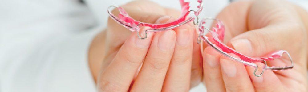 Slika 2: Snemljiv zobni aparat