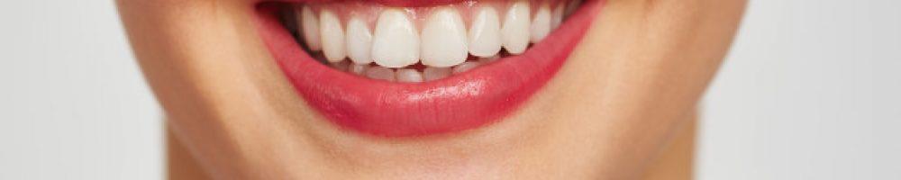 zobni mostiček je odlična rešitev za popravo izgleda zob