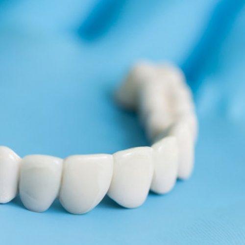 zobni mosticek